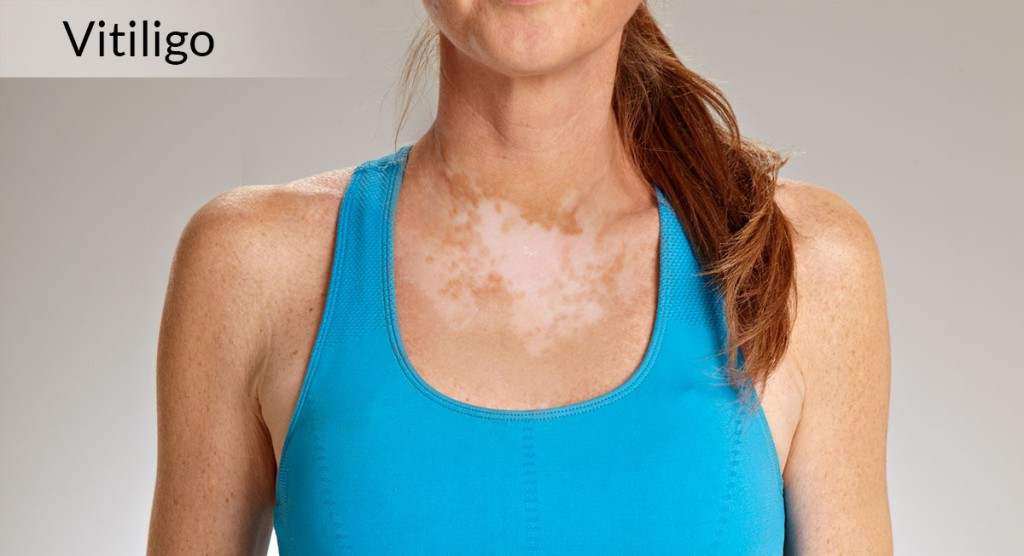 Does Chemicals Cause Vitiligo?